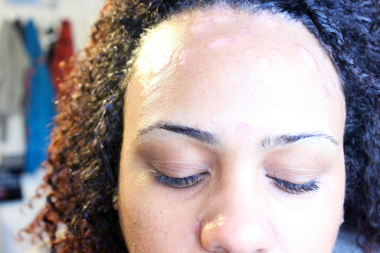 Accept. facial care black people