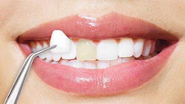 مراحل الصاق الفينير والزيركون للأسنان