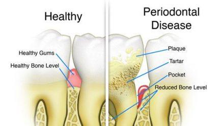 Periodontal Disease and Its Link to Rheumatoid Arthritis