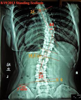 脊椎側彎, 脊椎側彎矯正, 脊椎側彎治療, 脊椎側彎 復健, 脊椎側彎 瑜珈