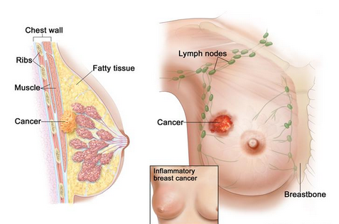 Hati-Hati, Kanker Payudara Banyak Menyerang Anak Muda