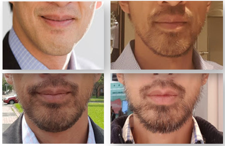 Growing beard asian