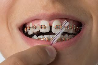 Diş Teli Fiyatlarını Etkileyen Faktörler