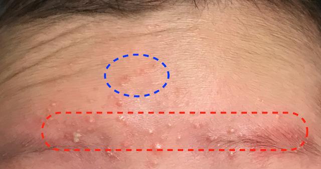 藍圈處疹子不嚴重,並不是很紅 ;紅框處膿疱較多,且底下皮膚較紅, 較為嚴重,較需要治療