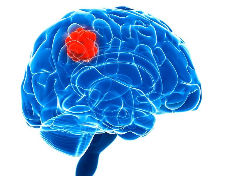 Ciri Ciri,Gejala,Penyebab Penyakit Kanker Otak & Obat Herbalnya