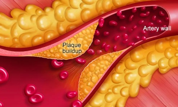 Plaque Build Up On The Walls Inside Blood Vessel