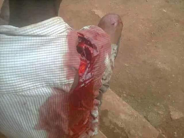 Graphic Photos Suspected Fulani Herdsman Brutally Attack -9127