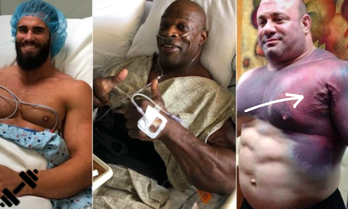 The 5 Worst Injuries On Bodybuilders Of All Time