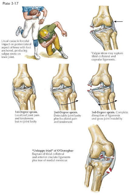 SPRAINS OF KNEE LIGAMENTS