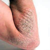 Bahan alami penyembuh eksim di kulit