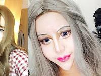 Usai Operasi Plastik, Gadis Ini Mengaku Jika Dirinya Paling Cantik Sedunia, Begini Kondisi Wajahnya