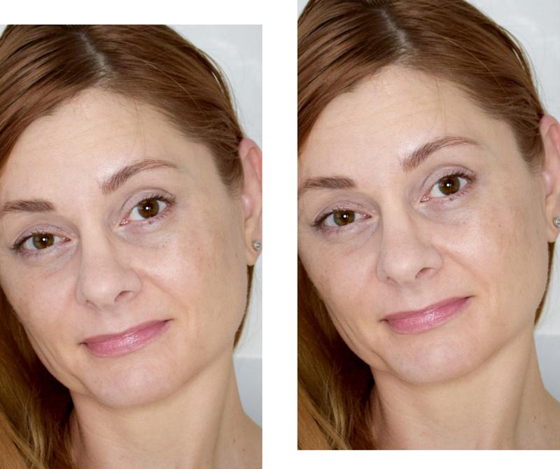 L'Oréal Paris Revitalift Laser X3 Peel-Pads mit Glykolsäure, Effekt