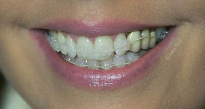 adult braces with bridge