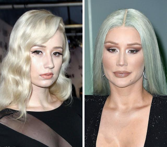 8 famosos que cambiaron su aspecto físico por completo en 10 años
