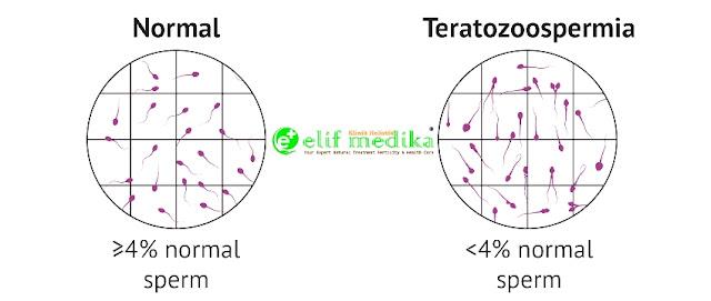 Normozoospermia dan Teratozoospermia