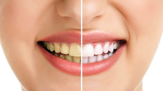Jangan Tertipu Dengan Hasil yang Instant, Coba Campurkan Bahan ini Saat Menyikat Gigi Selama 5 Hari