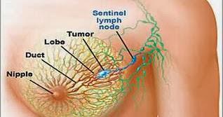 Obat Tumor Payudara Tradisional