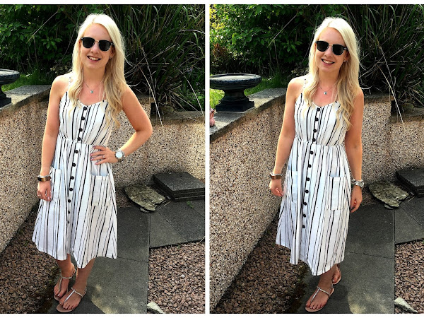 Outfit of the Day | eBay Button Dress