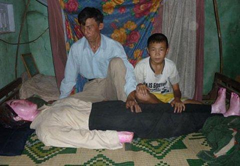 Suami Asal Vietnam Tidur Dengan Mayat Istrinya Selama 10 Tahun