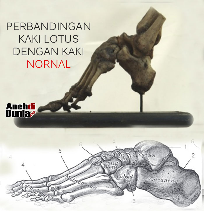 Perbandingan Kaki Lotus China dengan kaki Normal