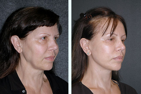 fat-grafting-before-after