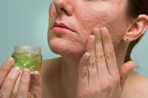 How to remove acne scars with natural cures