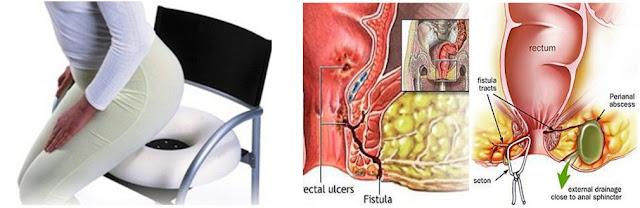 Obat Fistula Ani Ampuh, Cara Menyembuhkan Fistula Ani Tanpa Operasi