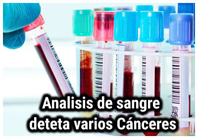 El análisis de sangre puede detectar muchos cánceres ocultos