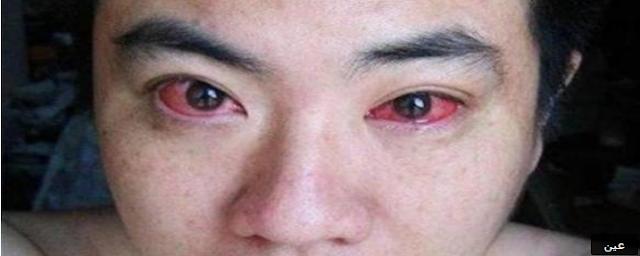 خطيــــــــــــر... شاب اصيب بسرطان العين…والسبب شيء نقوم به قبل النوم!