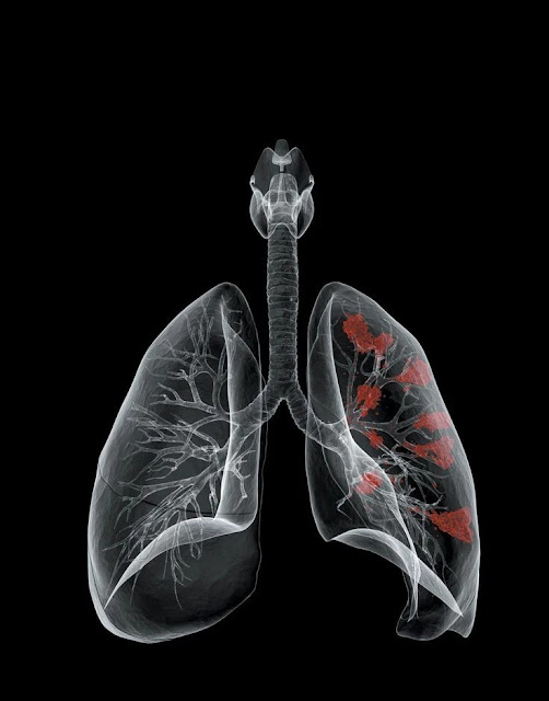 Mesothelioma Survival Rates & Life Expectancy