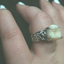 Carlee Leifkes 's engagement ring is made from her fiance Lucas Mancoon-Unger's wisdom tooth.