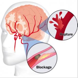 Resep obat stroke ringan, Mengobati Stroke Secara Alami, Gejala Penyakit Stroke Ringan, Obat Herbal Penyembuh Stroke, Obat Alami Penyakit Stroke, Mengobati Penyakit Stroke Yang Paling Efisien, Cara Mengobati Stroke Secara Herbal, Obat Stroke Cepat Sembuh, Obat Tradisional Untuk Mengobati Penyakit Stroke, Pengobatan Untuk Stroke Mata, Obat Paling Ampuh Untuk Penyakit Stroke, Ciri Penyakit Stroke Ringan