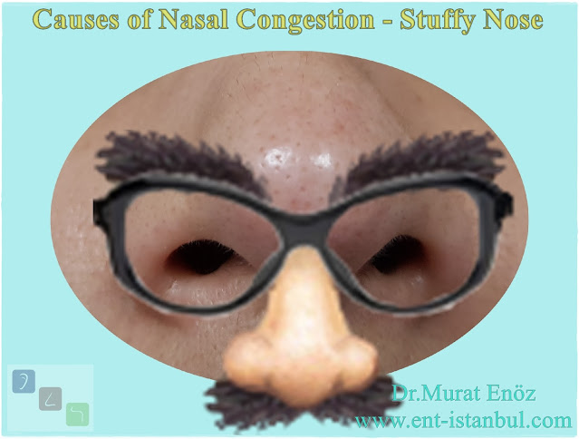 Causes of Nasal Congestion - Stuffy Nose