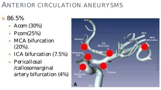 図:Anterior Circulation Aneurysms