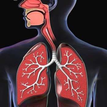 pneumonia quimica