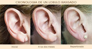 repara oreja desgarrada