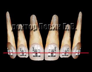 В конце ортодонтического лечения дуга прямая и зубы стоят безупречно ровно.