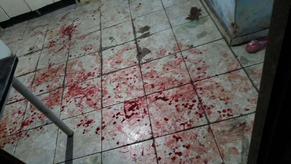 Mulher fica ferida após ser esfaqueada em Catanduva