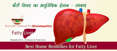 फैटी लिवर आर्युवेदिक ईलाज - उपचार, Home Remedies for Fatty Liver in Hindi ,Fatty Liver KA ILAJ UPCHAR, Fatty Liver Ayurvedic Medicine, Fatty liver Ilaj, Liver ke gharelu upay