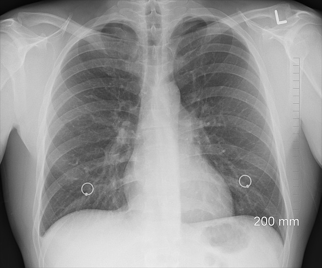 Tuberculosis symptoms