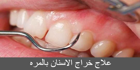 علاج خراج الاسنان بالمره