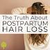 A verdade sobre a perda de cabelo pós-parto.