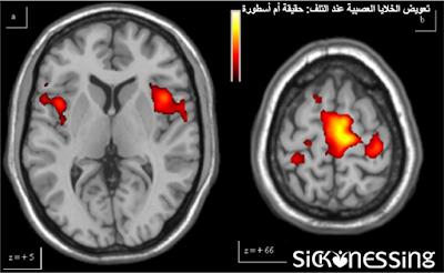 تعويض الخلايا العصبية عند التلف: حقيقة أم أسطورة