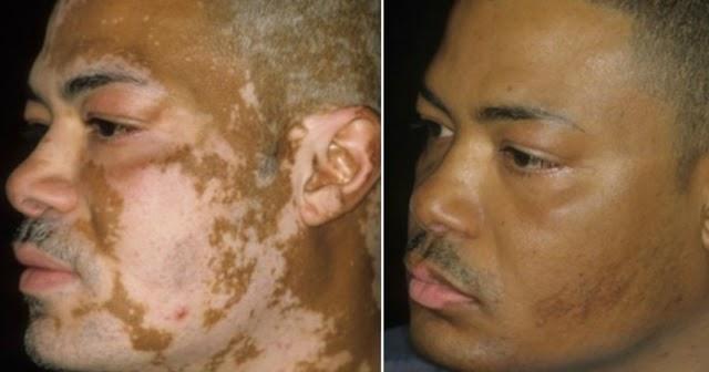 Médicos cubanos desarrollan tratamiento capaz de eliminar el vitiligo en 3 días