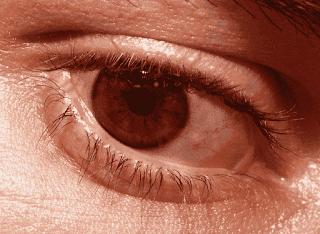 Anda Bisa Kenali Penyakit Mata Yang Menular dan Tidak Menular