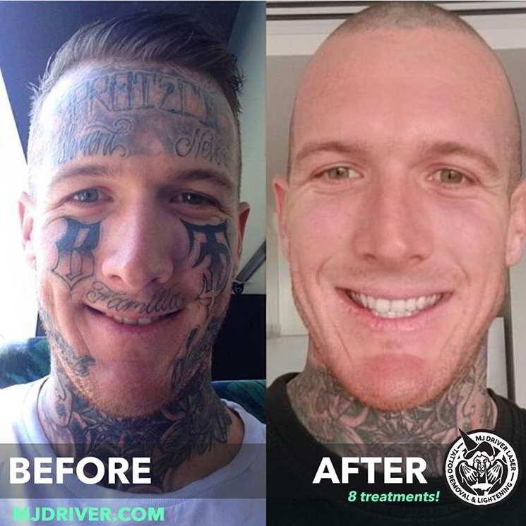 Resultado de eliminar un tatuaje con láser