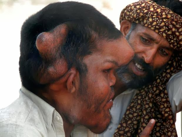 A Man With Giant Head   Sain Mumtaz   Unbelievable Info A Man With Giant Head   Sain Mumtaz