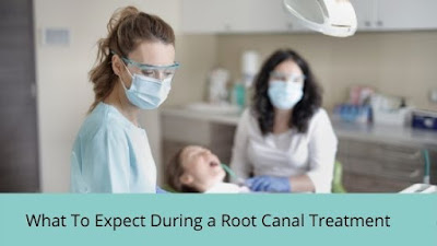 wHAT TO EXPECT DURING A ROOT CANAL TREATMENT