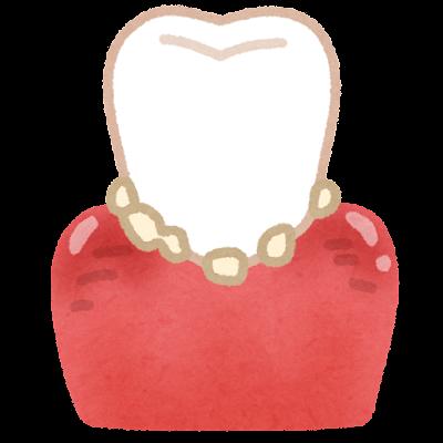 腫れた歯茎のイラスト(歯石あり)