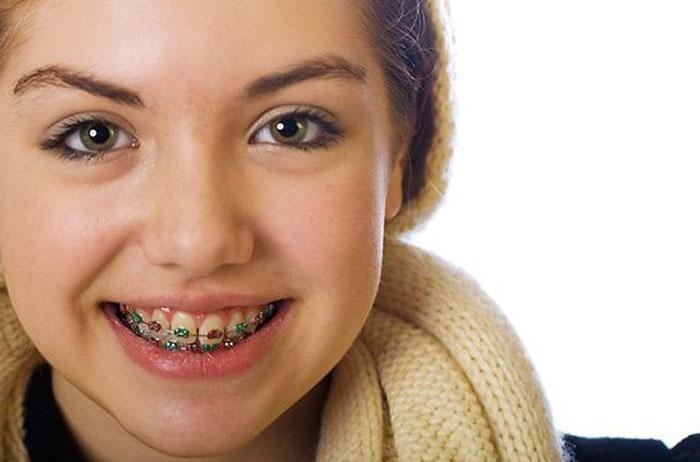 تقويم الأسنان وأفضل عمر لتقويم الأسنان للأطفال والكبار